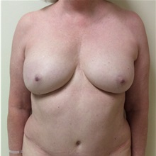 Breast Reconstruction After Photo by Ankit Desai, MD; Jacksonville, FL - Case 34066