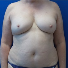 Breast Reconstruction Before Photo by Ankit Desai, MD; Jacksonville, FL - Case 34066