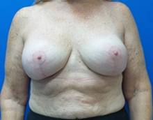 Breast Augmentation After Photo by Ankit Desai, MD; Jacksonville, FL - Case 34068