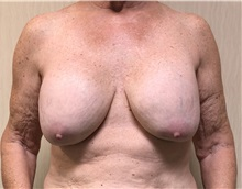 Breast Augmentation Before Photo by Ankit Desai, MD; Jacksonville, FL - Case 34068