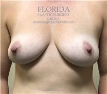 Breast Augmentation Before Photo by Ankit Desai, MD; Jacksonville, FL - Case 34193