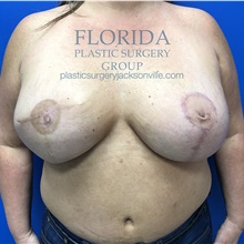 Breast Reconstruction After Photo by Ankit Desai, MD; Jacksonville, FL - Case 34636