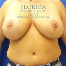 Breast Reconstruction Before Photo by Ankit Desai, MD; Jacksonville, FL - Case 34636