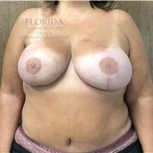 Breast Reconstruction After Photo by Ankit Desai, MD; Jacksonville, FL - Case 34650