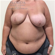 Breast Reconstruction Before Photo by Ankit Desai, MD; Jacksonville, FL - Case 34650