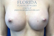 Breast Augmentation After Photo by Ankit Desai, MD; Jacksonville, FL - Case 34652
