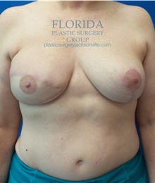Breast Reconstruction After Photo by Ankit Desai, MD; Jacksonville, FL - Case 35668