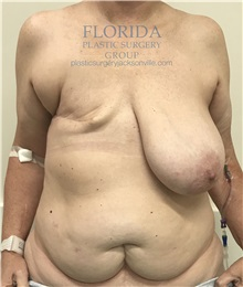 Breast Reconstruction Before Photo by Ankit Desai, MD; Jacksonville, FL - Case 35668