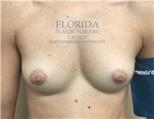 Breast Augmentation Before Photo by Ankit Desai, MD; Jacksonville, FL - Case 35670