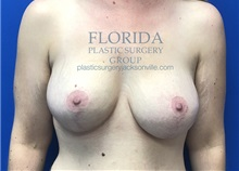 Breast Lift After Photo by Ankit Desai, MD; Jacksonville, FL - Case 35703
