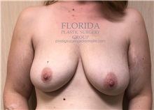 Breast Lift Before Photo by Ankit Desai, MD; Jacksonville, FL - Case 35703