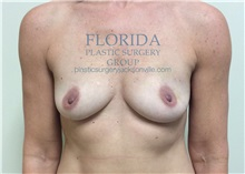 Breast Reconstruction Before Photo by Ankit Desai, MD; Jacksonville, FL - Case 35867