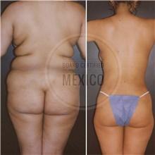 Body Contouring After Photo by Arturo Munoz Meza, MD; Tijuana, B.C. - Case 40878