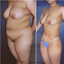 Body Contouring Before Photo by Arturo Munoz Meza, MD; Tijuana, B.C. - Case 40878