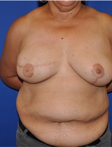 Breast Reconstruction After Photo by Jerry Weiger Chang, MD; Flushing, NY - Case 30390