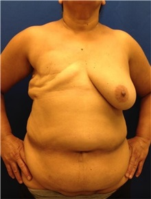Breast Reconstruction Before Photo by Jerry Weiger Chang, MD; Flushing, NY - Case 30390