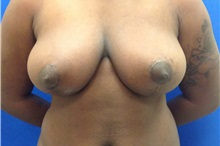 Breast Reduction After Photo by Jerry Weiger Chang, MD; Flushing, NY - Case 30395