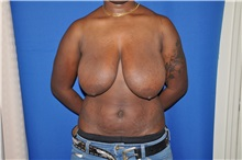 Breast Reduction Before Photo by Jerry Weiger Chang, MD; Flushing, NY - Case 30395