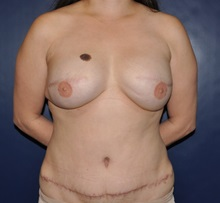 Tummy Tuck After Photo by Jerry Weiger Chang, MD; Flushing, NY - Case 30399