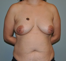 Tummy Tuck Before Photo by Jerry Weiger Chang, MD; Flushing, NY - Case 30399