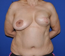 Breast Reconstruction Before Photo by Jerry Weiger Chang, MD; Flushing, NY - Case 30400