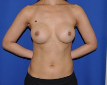 Breast Reconstruction After Photo by Jerry Weiger Chang, MD; Flushing, NY - Case 30402