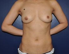 Breast Reconstruction Before Photo by Jerry Weiger Chang, MD; Flushing, NY - Case 30402