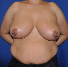 Breast Reduction After Photo by Jerry Weiger Chang, MD; Flushing, NY - Case 30404