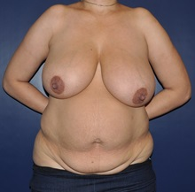 Breast Reduction Before Photo by Jerry Weiger Chang, MD; Flushing, NY - Case 30404