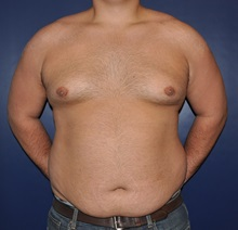 Male Breast Reduction After Photo by Jerry Weiger Chang, MD; Flushing, NY - Case 30407