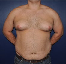Male Breast Reduction Before Photo by Jerry Weiger Chang, MD; Flushing, NY - Case 30407