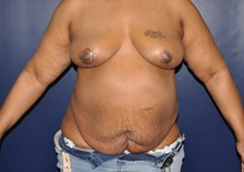 Breast Reconstruction After Photo by Jerry Weiger Chang, MD; Flushing, NY - Case 30416