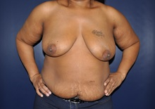 Breast Reconstruction Before Photo by Jerry Weiger Chang, MD; Flushing, NY - Case 30416