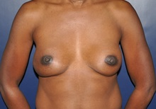 Breast Reconstruction After Photo by Jerry Weiger Chang, MD; Flushing, NY - Case 35002