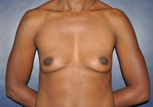 Breast Reconstruction Before Photo by Jerry Weiger Chang, MD; Flushing, NY - Case 35002