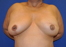 Breast Reconstruction After Photo by Jerry Weiger Chang, MD; Flushing, NY - Case 35012