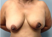 Breast Reconstruction Before Photo by Jerry Weiger Chang, MD; Flushing, NY - Case 35012