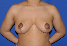 Breast Reduction After Photo by Jerry Weiger Chang, MD; Flushing, NY - Case 35013