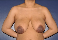 Breast Reduction Before Photo by Jerry Weiger Chang, MD; Flushing, NY - Case 35013