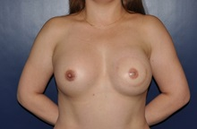 Breast Reconstruction After Photo by Jerry Weiger Chang, MD; Flushing, NY - Case 35026