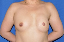 Breast Reconstruction Before Photo by Jerry Weiger Chang, MD; Flushing, NY - Case 35026