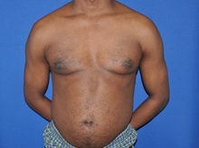 Male Breast Reduction After Photo by Jerry Weiger Chang, MD; Flushing, NY - Case 35028