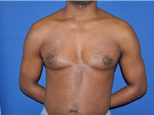 Male Breast Reduction Before Photo by Jerry Weiger Chang, MD; Flushing, NY - Case 35028