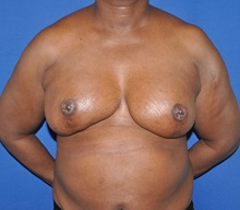 Breast Reconstruction After Photo by Jerry Weiger Chang, MD; Flushing, NY - Case 35030