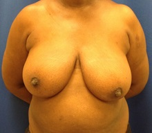 Breast Reconstruction Before Photo by Jerry Weiger Chang, MD; Flushing, NY - Case 35030