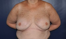 Breast Reconstruction After Photo by Jerry Weiger Chang, MD; Flushing, NY - Case 36688