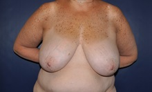 Breast Reconstruction Before Photo by Jerry Weiger Chang, MD; Flushing, NY - Case 36688