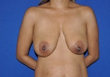 Breast Reconstruction Before Photo by Jerry Weiger Chang, MD; Flushing, NY - Case 36689