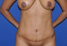Tummy Tuck After Photo by Jerry Weiger Chang, MD; Flushing, NY - Case 36690