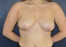 Breast Reduction After Photo by Jerry Weiger Chang, MD; Flushing, NY - Case 36696